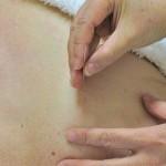 Terapie alternatywne również stosuje się na łysienie