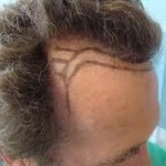 Przeszczep włosów to tak zwana medycyna estetyczna