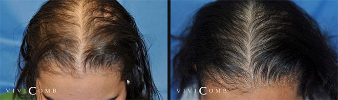 Efekty stosowania grzebienia laserowego ViviComb